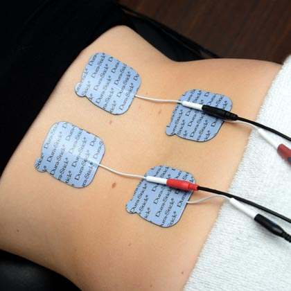 Electrotherapy. TENS.